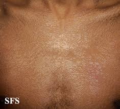 tinea versicolor neck chest back arm skin fungus pictures