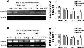 normobaric hyperoxia reduces blood occludin fragments in rats and