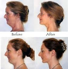 hairstyles that hide sagging jaw line sharpen the jawline tighten the jowls and lose a double chin