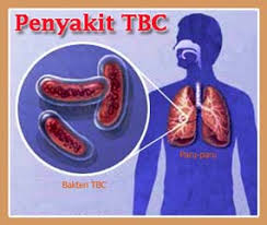 Obat Tbc obat tbc alami pengobatan yang sudah terbukti dan teruji keuhannya