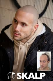 17 best scalp micro images on pinterest scalp micropigmentation