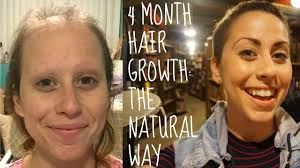 hair growth after chemo pictures how i am speeding up hair growth after chemo naturally youtube