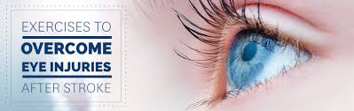 flashing lights in eye stroke eye exercises after a stroke get started with recovery