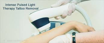 intense pulsed light tattoo removal tattoo removal methods