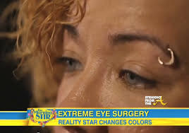 tiny color tiny harris eye color surgery straightfromthea 1
