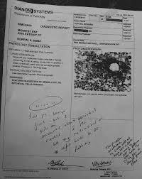 case study sample report case study naso pharyngeal carcinoma next generation pdt biopsy and pathology report after ngpdt treatment of the lymph node