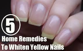 5 home remedies to whiten yellow nails gilscosmo com shopping