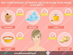 How To Remove Blind Pimple How To Get Rid Of Acne Scars How To Remove Acne Scars