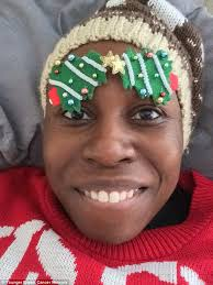 cancer patients start new beauty trend using festive decorations