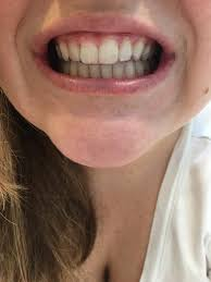 Groupon Teeth Whitening Chicago Smile Direct Club Invisible Aligner Review Citrus U0026 Delicious