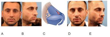 management of the middle vault rhinoplasty archive