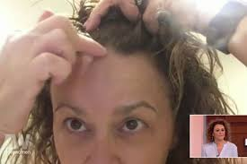 hair styles for women with center bald spots thinning locks and bald patches the hidden horrors of female