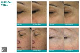 skinclinical reverse light therapy anti aging device reviews thibiant salon and spa beverly hills beverly hills magazine