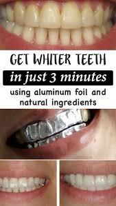 Dentist That Do Teeth Whitening Best 25 Whiter Nails Ideas On Pinterest White Teeth Remedies