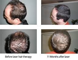 Laser Hair Therapy For Hair Regrowth Tupelo Ms