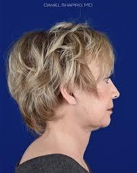 hairstyle for sagging jawline facelift photos shapiro plastic surgery scottsdale az
