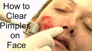 Face Mapping Acne How To Clear Pimples On Face How To Clear Pimples On Face
