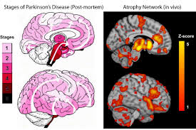 Brain Mapping Study Maps The Progression Of Parkinson U0027s Disease Within The Brain