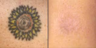 faster laser tattoo removal treatment can remove tattoos easily
