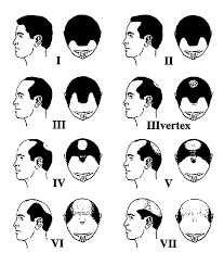 types of hair lines receding hairline love your hair transplant