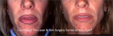 permanent make up removal nyc