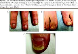mycose du si e b diagnostic et prise en charge du psoriasis the of family
