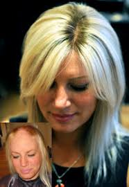 hair extensions post chemo toronto treatment for hair loss after chemotherapy trendy hairstyles in