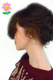 73 best children hair loss alopecia areata alopecia totalis and