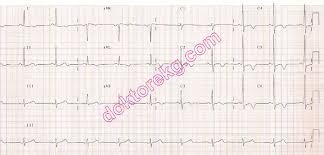 strain pattern ecg meaning strain pattern left ventricle ventricular hypertrophy yüklenme