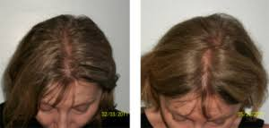 low level light therapy hair laser hair santangelo hair replacement