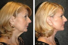 hairstyles to disguise saggy necks mini face lift face lift