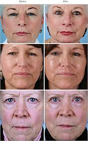 understanding perception before and after blepharoplasty