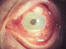 what causes eyes to be sensitive to light eye pain and painful eye socket causes pictures other symptoms