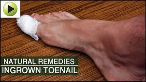 natural remedies for ingrown toenail youtube