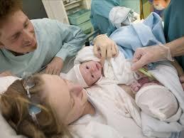 accouchement en si e par voie basse jumeaux privilégier l accouchement par césarienne à la voie