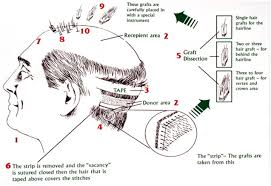 hair transplant calculator follicular unit transplantation fut hair transplant delhi