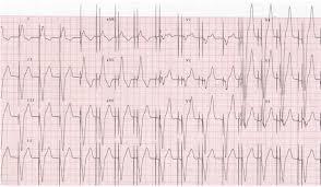 pacemaker chambre dossier progressif cardiologie focus ecni elsevier masson le