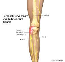 Anatomy Of Knee Injuries Peroneal Nerve Injury Treatment Causes Symptoms
