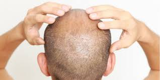 silica for hair growth a unique solution for superfast hair growth