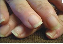 brittle nails causes and remedies