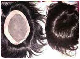 hair bonding camouflaging tricks value clinic hair transplant in mumbai