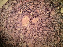 pilonidal cyst histology expressmed laboratories anatomic pathology services