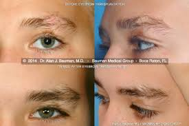 How To Tweeze Your Eyebrows Eyebrow Transplantation Special Cases Bauman Medical Group