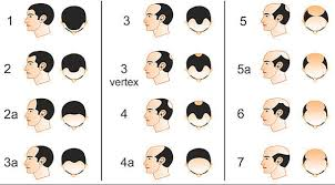 haircuts for crown bald spots these are the actual ways you can stop losing your hair