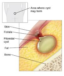 pilonidal cyst location pilonidal cyst sterling care in home care westchester ny in