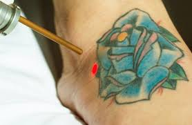 st pete tattoo removal florida laser tattoo removal