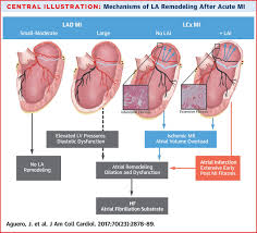atrial infarction and ischemic mitral regurgitation contribute to