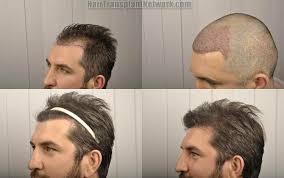 prescreened hair transplant physicians patient details