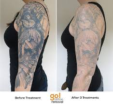 826 best tattoo removal in progress images on pinterest