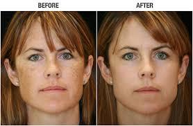 ipl intense pulsed light ipl intense pulse light treatments westerville dermatology